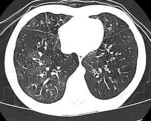 Pulmones enfermos por comer palomitas