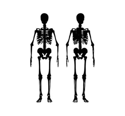 Osteoporosis y lácteos